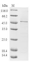 DHAND / HAND2 Protein - (Tris-Glycine gel) Discontinuous SDS-PAGE (reduced) with 5% enrichment gel and 15% separation gel.