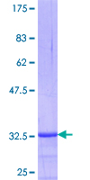 DHRS2 / HEP27 Protein - 12.5% SDS-PAGE Stained with Coomassie Blue.
