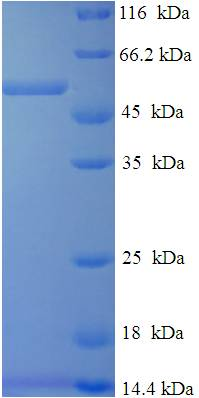 DHRS7 Protein
