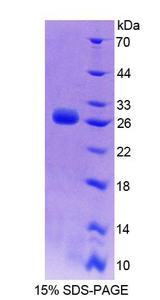 DMPK / DM Protein - Recombinant Dystrophia Myotonica Protein Kinase By SDS-PAGE