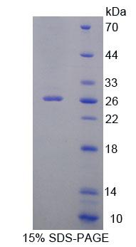 DNAJC2 / ZRF1 Protein - Recombinant Zuotin Related Factor 1 By SDS-PAGE