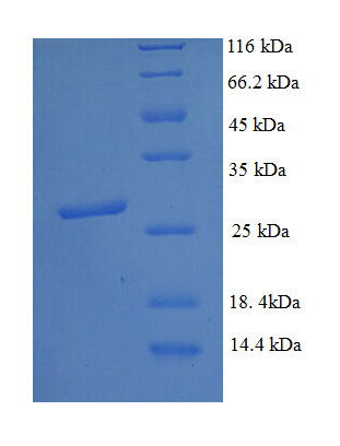 DNMT3A Protein