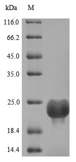 DOCK8 Protein - (Tris-Glycine gel) Discontinuous SDS-PAGE (reduced) with 5% enrichment gel and 15% separation gel.