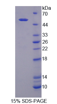 DPP2 / DPP7 Protein - Recombinant Dipeptidyl Peptidase 7 By SDS-PAGE