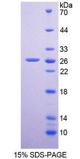 DPP6 / Dipeptidylpeptidase 6 Protein - Recombinant  Dipeptidyl Peptidase 6 By SDS-PAGE