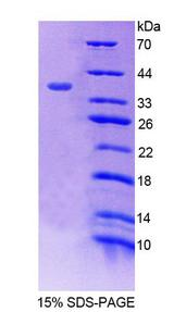 DRPLA / Atrophin-1 Protein - Recombinant Atrophin 1 By SDS-PAGE