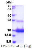 E48 / LY6D Protein