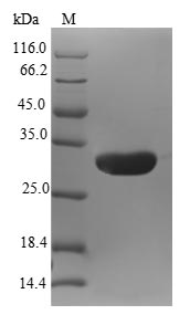 EAR2 / NR2F6 Protein - (Tris-Glycine gel) Discontinuous SDS-PAGE (reduced) with 5% enrichment gel and 15% separation gel.