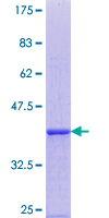 EDEM1 / EDEM Protein - 12.5% SDS-PAGE Stained with Coomassie Blue.