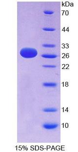 EFNA3 / Ephrin A3 Protein - Recombinant  Ephrin A3 By SDS-PAGE