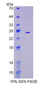 EFNA5 / Ephrin A5 Protein - Recombinant  Ephrin A5 By SDS-PAGE