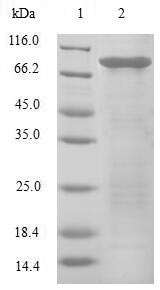 EIF3E Protein - (Tris-Glycine gel) Discontinuous SDS-PAGE (reduced) with 5% enrichment gel and 15% separation gel.