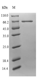 Endogenous Retrovirus HERV-K10 putative protease Protein - (Tris-Glycine gel) Discontinuous SDS-PAGE (reduced) with 5% enrichment gel and 15% separation gel.