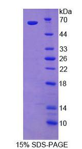 EPHA4 / EPH Receptor A4 Protein - Recombinant  Ephrin Type A Receptor 4 By SDS-PAGE