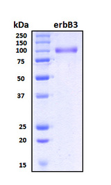 ERBB3 / HER3 Protein - SDS-PAGE under reducing conditions and visualized by Coomassie blue staining