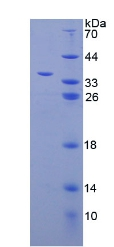 ERGIC-53 / LMAN1 Protein - Recombinant Lectin, Mannose Binding 1 By SDS-PAGE