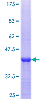 EXOSC8 Protein - 12.5% SDS-PAGE Stained with Coomassie Blue.