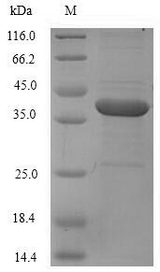 F11 / FXI / Factor XI Protein - (Tris-Glycine gel) Discontinuous SDS-PAGE (reduced) with 5% enrichment gel and 15% separation gel.