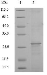 F3 / CD142 / Tissue factor Protein - (Tris-Glycine gel) Discontinuous SDS-PAGE (reduced) with 5% enrichment gel and 15% separation gel.