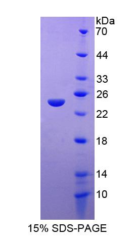 FAM20A Protein - Recombinant Family With Sequence Similarity 20, Member A By SDS-PAGE