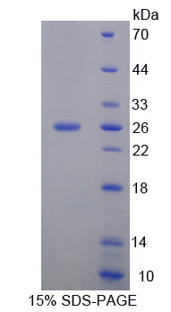 FAM3D Protein - Recombinant  Family With Sequence Similarity 3, Member D By SDS-PAGE