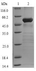 FBP1 Protein - (Tris-Glycine gel) Discontinuous SDS-PAGE (reduced) with 5% enrichment gel and 15% separation gel.