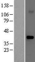 FBXO32 / Fbx32 Protein - Western validation with an anti-DDK antibody * L: Control HEK293 lysate R: Over-expression lysate