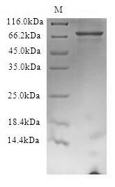 FBXW7 / FBW7 Protein - (Tris-Glycine gel) Discontinuous SDS-PAGE (reduced) with 5% enrichment gel and 15% separation gel.