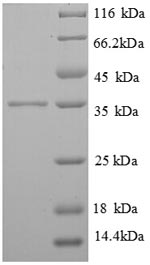 FCER1G Protein - (Tris-Glycine gel) Discontinuous SDS-PAGE (reduced) with 5% enrichment gel and 15% separation gel.