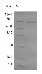 FDPS Protein - (Tris-Glycine gel) Discontinuous SDS-PAGE (reduced) with 5% enrichment gel and 15% separation gel.