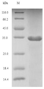 FGF10 Protein - (Tris-Glycine gel) Discontinuous SDS-PAGE (reduced) with 5% enrichment gel and 15% separation gel.