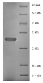 FGF13 Protein - (Tris-Glycine gel) Discontinuous SDS-PAGE (reduced) with 5% enrichment gel and 15% separation gel.