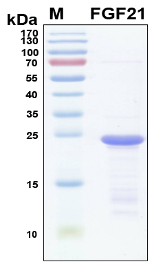 FGF21 Protein - SDS-PAGE under reducing conditions and visualized by Coomassie blue staining