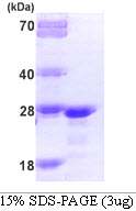 FGF21 Protein