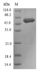FGFR3 Protein - (Tris-Glycine gel) Discontinuous SDS-PAGE (reduced) with 5% enrichment gel and 15% separation gel.