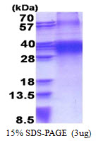 FHL3 Protein