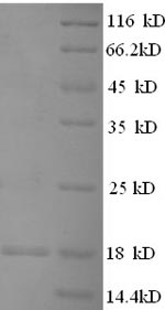 FLG / Filaggrin Protein - (Tris-Glycine gel) Discontinuous SDS-PAGE (reduced) with 5% enrichment gel and 15% separation gel.
