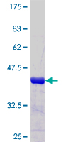 FOXJ2 Protein - 12.5% SDS-PAGE Stained with Coomassie Blue.