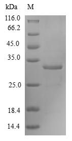 FOXM1 Protein - (Tris-Glycine gel) Discontinuous SDS-PAGE (reduced) with 5% enrichment gel and 15% separation gel.