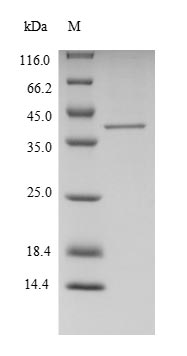 FTSJ1 Protein - (Tris-Glycine gel) Discontinuous SDS-PAGE (reduced) with 5% enrichment gel and 15% separation gel.