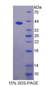 FUT6 Protein - Recombinant  Fucosyltransferase 6 By SDS-PAGE