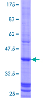GATM / AGAT Protein - 12.5% SDS-PAGE Stained with Coomassie Blue.