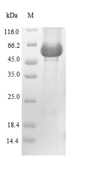 GBA / Glucosidase Beta Acid Protein - (Tris-Glycine gel) Discontinuous SDS-PAGE (reduced) with 5% enrichment gel and 15% separation gel.