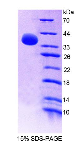 GBP4 / Mpa2 Protein - Recombinant Guanylate Binding Protein 4 By SDS-PAGE