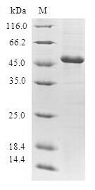 GCL / Grancalcin Protein - (Tris-Glycine gel) Discontinuous SDS-PAGE (reduced) with 5% enrichment gel and 15% separation gel.