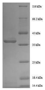 GDF11 / GDF-11 Protein - (Tris-Glycine gel) Discontinuous SDS-PAGE (reduced) with 5% enrichment gel and 15% separation gel.