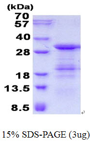 GINS4 / SLD5 Protein