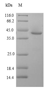 GLI2 Protein - (Tris-Glycine gel) Discontinuous SDS-PAGE (reduced) with 5% enrichment gel and 15% separation gel.