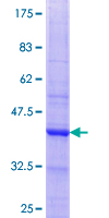 GLYAT Protein - 12.5% SDS-PAGE Stained with Coomassie Blue.