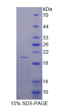 GMF Beta / GMFB Protein - Recombinant  Glia Maturation Factor Beta By SDS-PAGE